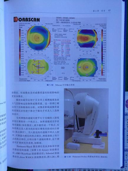 视频手术基本技术(附赠原版DVD手术视频)--联乳验角膜图片
