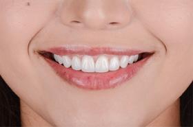 盖德口腔单人洁牙套餐(含深度检查、口腔CT、抛光等)