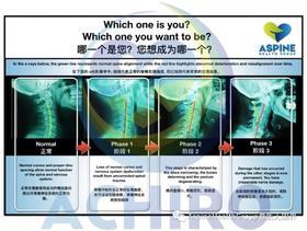 Aspine系统化颈椎分析&矫正培训班  XYJK  10.19-20上海