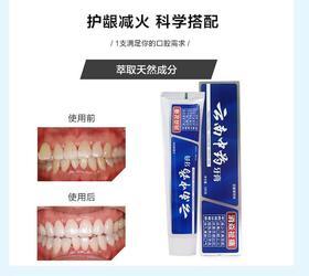 云南中药牙膏 美白消炎 改善口腔180g