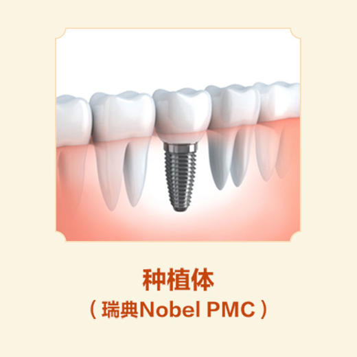 种植体(瑞典Nobel PMC)-远东罗湖院区-4楼口腔科 商品图0